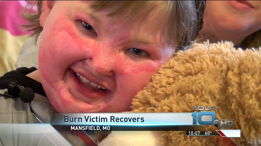 Mansfield Boy Continues to Recover From House Fire_73507722-159532