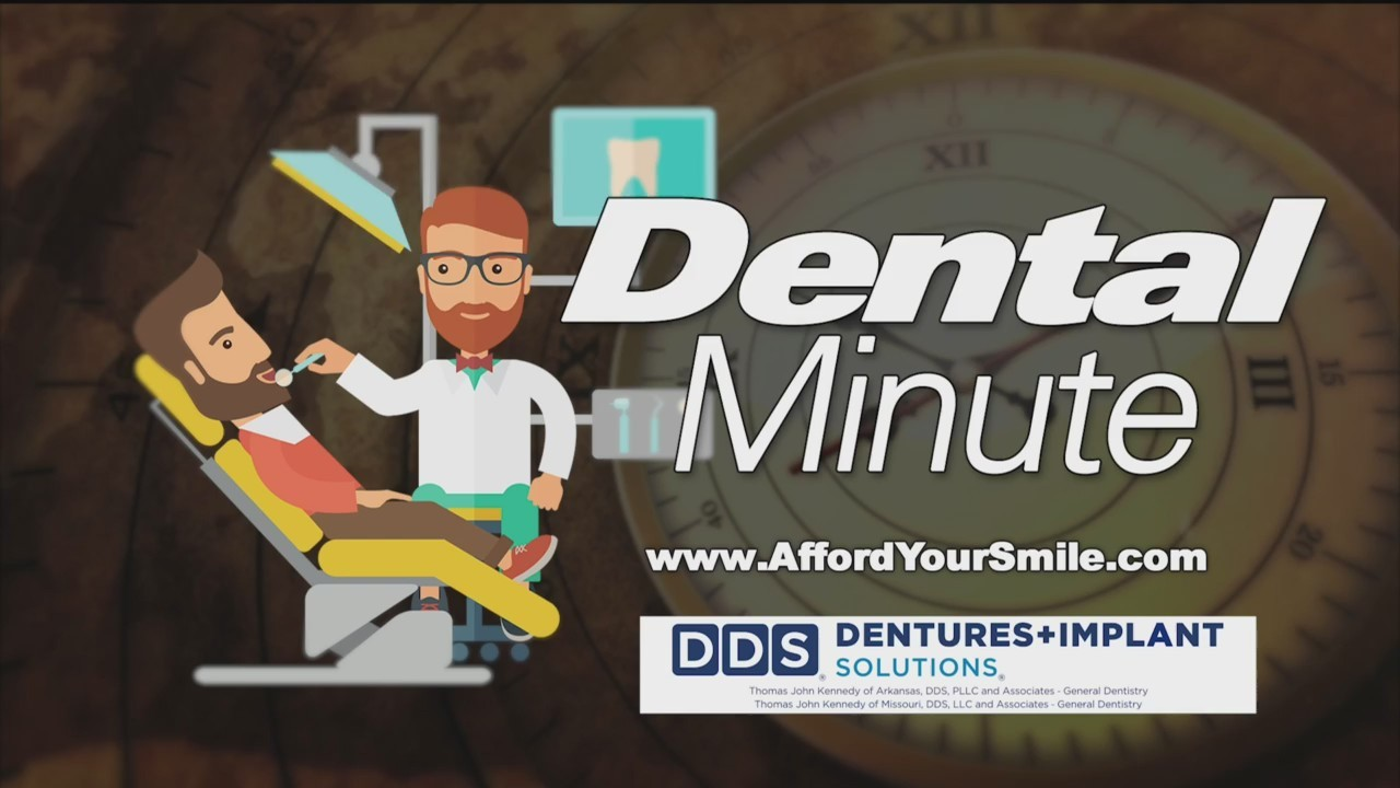 DDS of Harrison Dental Minute - Implants