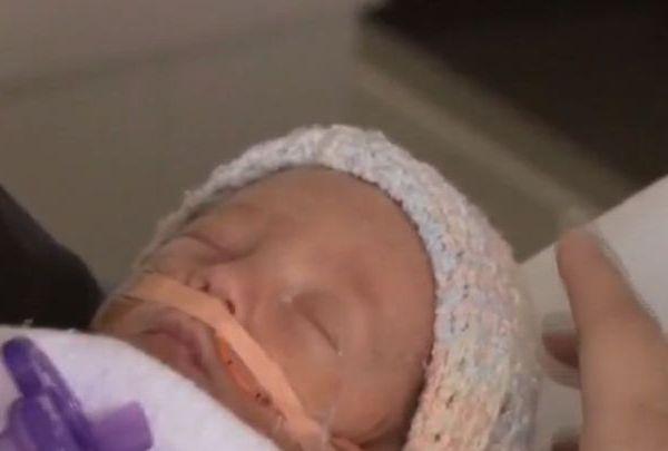 premature birth_1518213299464.jpg.jpg