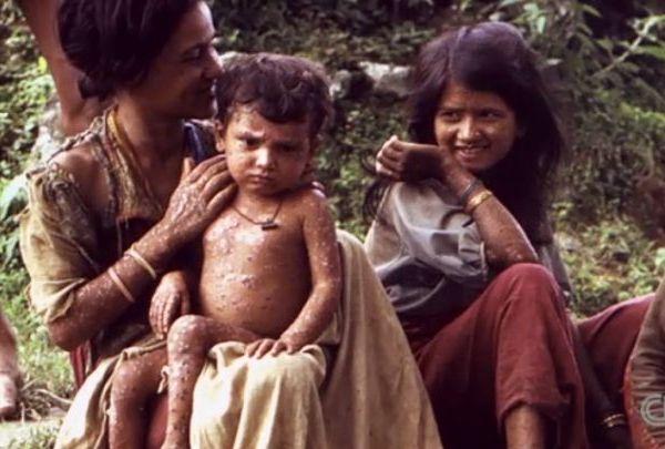 smallpox_1531606157670.jpg