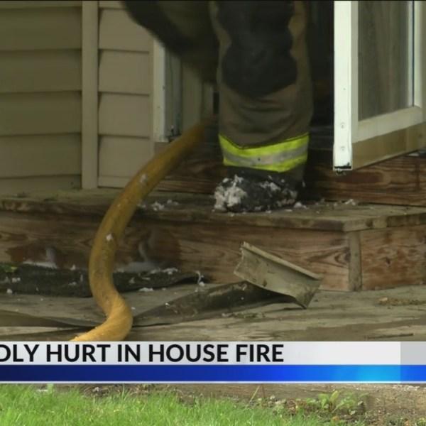 Man hurt after fire on Burton Avenue